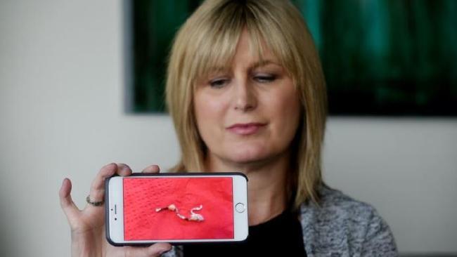 นาง Judith Daley กับเศษฝอยขัดหม้อที่ด้วยไม่เหมือนฝอยขัดหมอที่เธอใช้โทรศัพท์มือถือถ่ายไว้ : ภาพจากนสพ. the Courier Mail